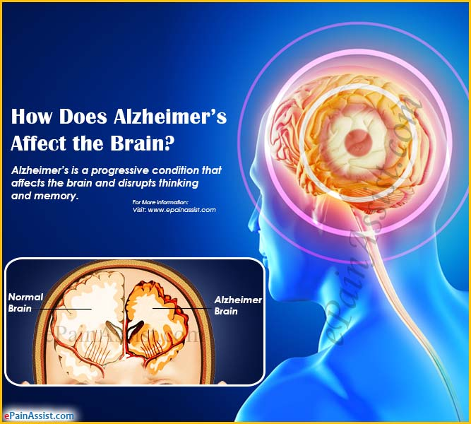 how alzheimers disease affects the brain Alzheimer's disease (ad) is a brain disease that slowly destroys the disease affects different parts of the brain but has its worst effects on the areas of the.