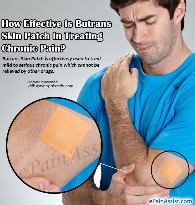 How Effective is Butrans Skin Patch in Treating Chronic Pain?