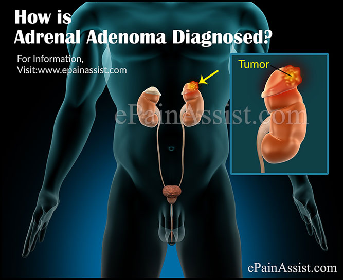 How is Adrenal Adenoma Diagnosed?