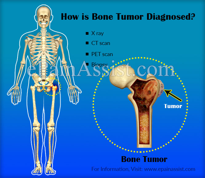 How is Bone Tumor Diagnosed?