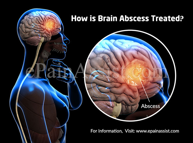 How is Brain Abscess Treated?