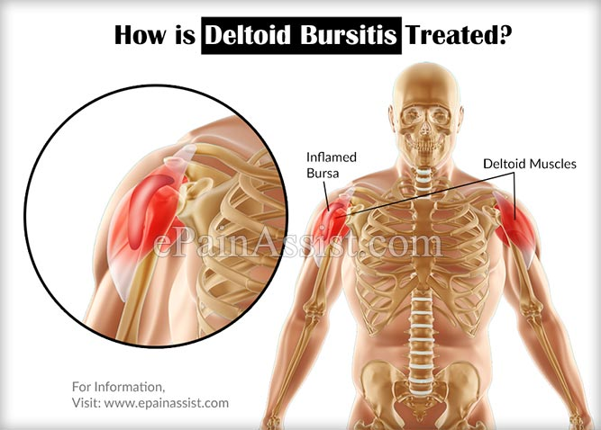 What Is Deltoid Bursitis Know Its Treatment Recovery Exercises