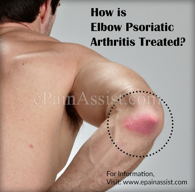 How is Elbow Psoriatic Arthritis Treated?