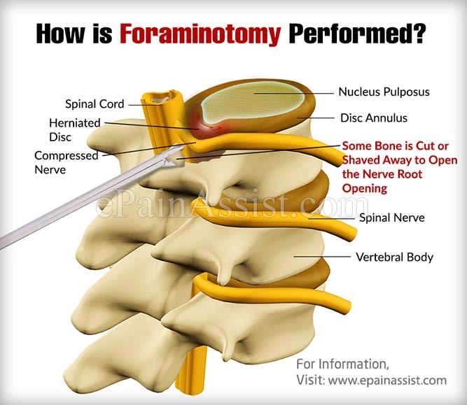 Why is Foraminotomy Procedure Performed?