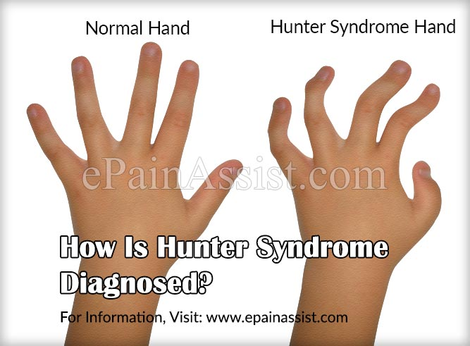 How Is Hunter Syndrome Diagnosed?