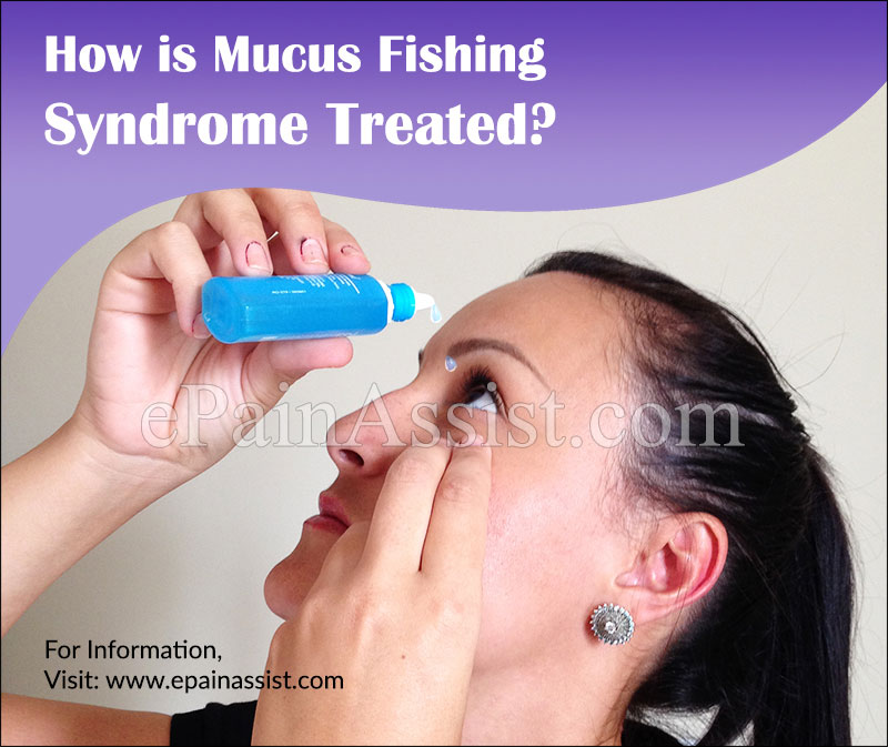 How is Mucus Fishing Syndrome Treated?