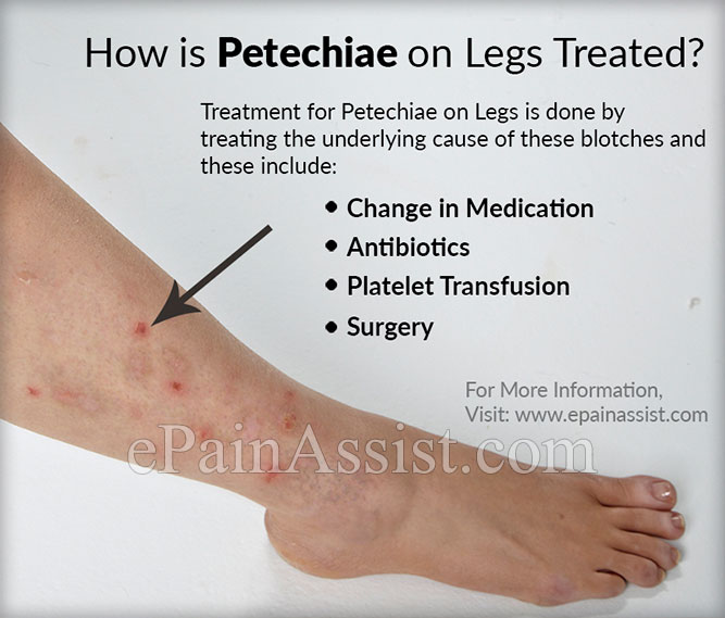 what causes petechiae on legs & how is it treated?, Human Body