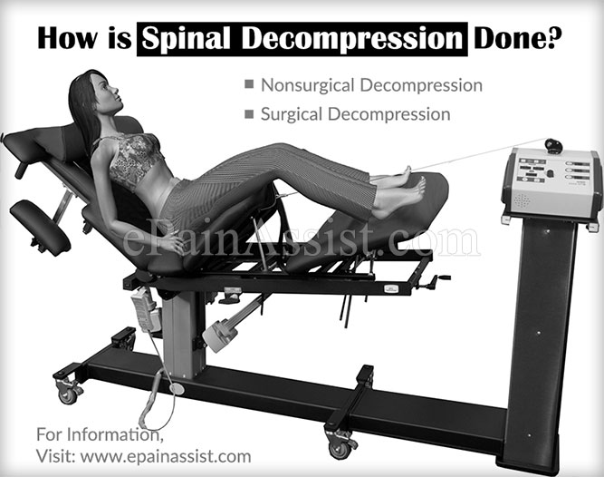 How is Spinal Decompression Done?