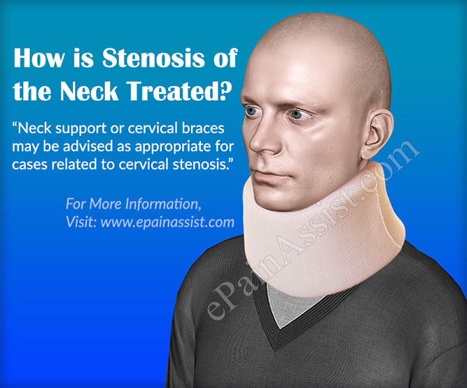 How is Stenosis of the Neck Treated?
