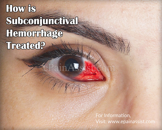 How is Subconjunctival Hemorrhage Treated?