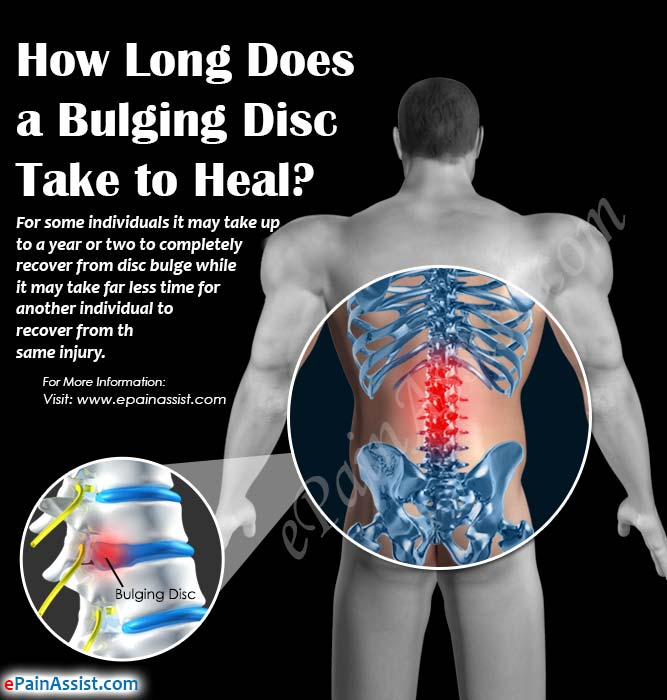 How Long Does A Bulging Disc Take To Heal?