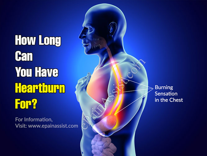 How Long Can You Have Heartburn For?
