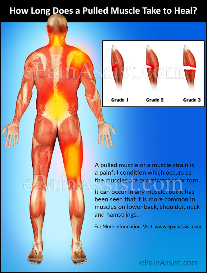 How Long Does A Pulled Muscle Take To Heal