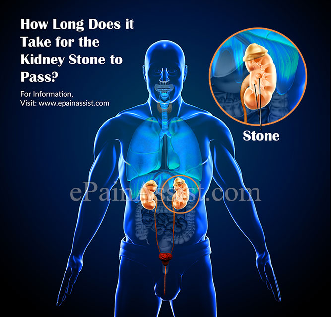 How Long Does It Take For The Kidney Stone To Pass