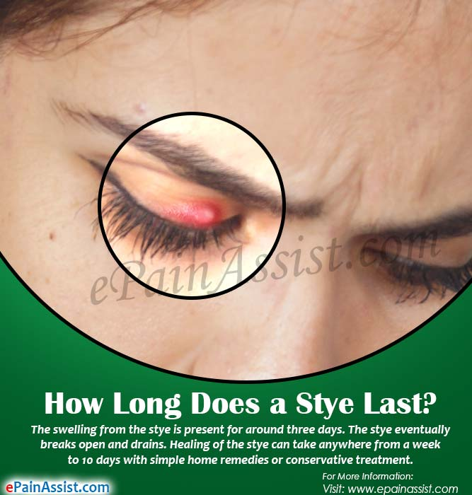 How Long Does A Stye Last Home Remedies To Get Rid Of It