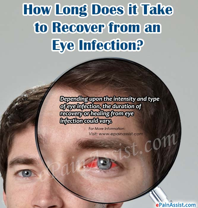 How Long Does it Take to Recover from an Eye Infection?