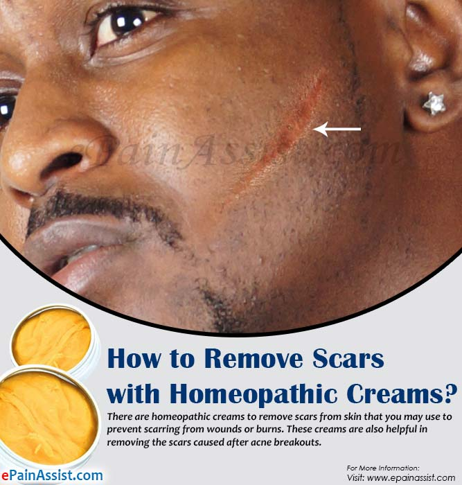How to Remove Scars with Homeopathic Creams?