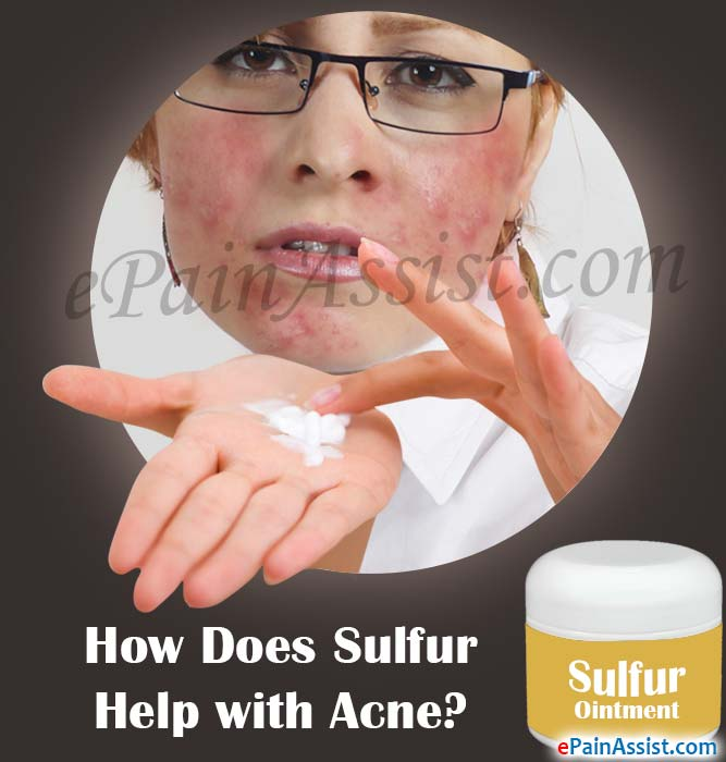 How Does Sulfur Help with Acne?