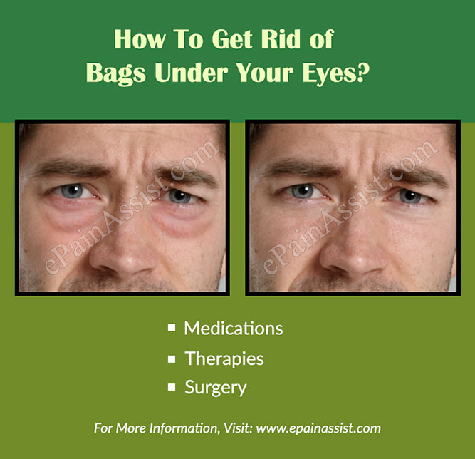 How To Get Rid of Bags Under Your Eyes?