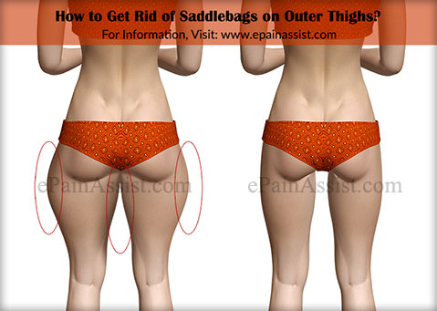 How to Get Rid of Saddlebags on Outer Thighs?