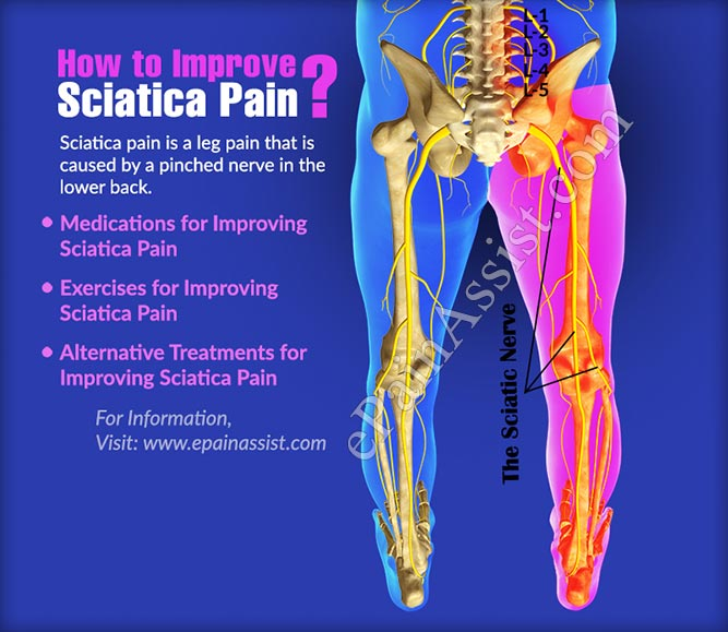 How to Improve Sciatica Pain?