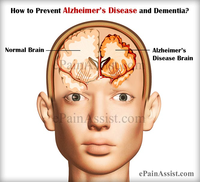 How to Prevent Alzheimer's Disease and Dementia?