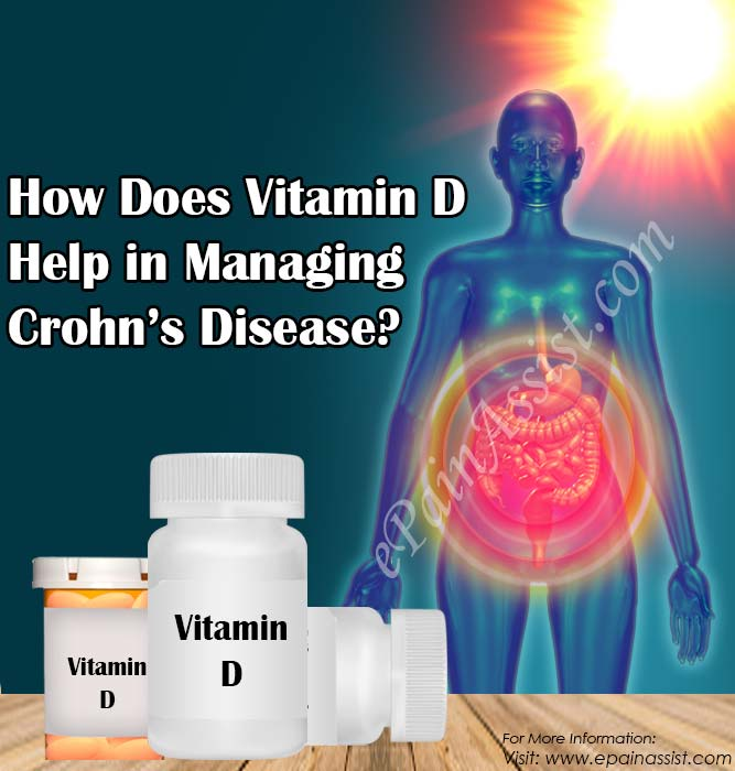How Does Vitamin D Help in Managing Crohn's Disease?
