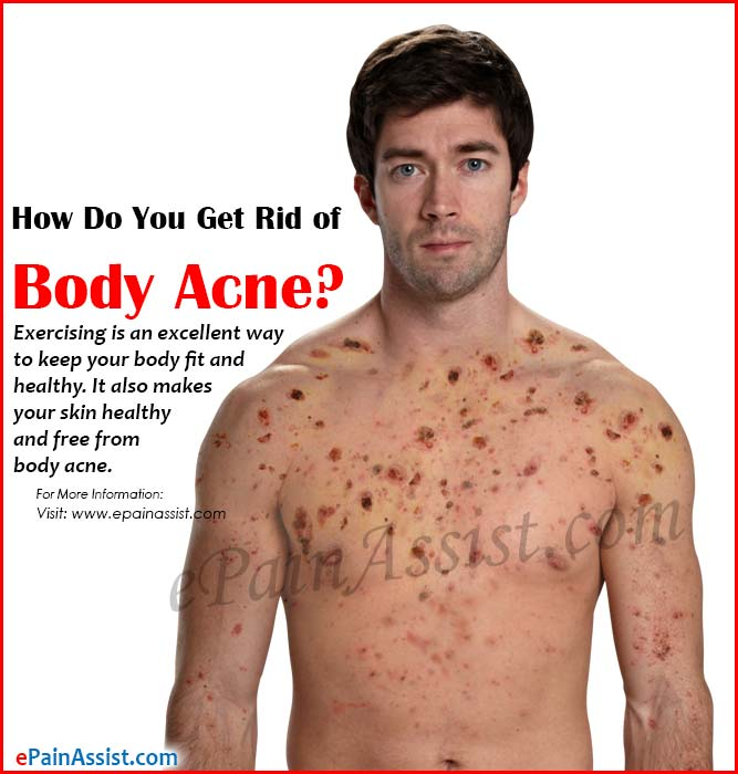 How Do You Get Rid of Body Acne?