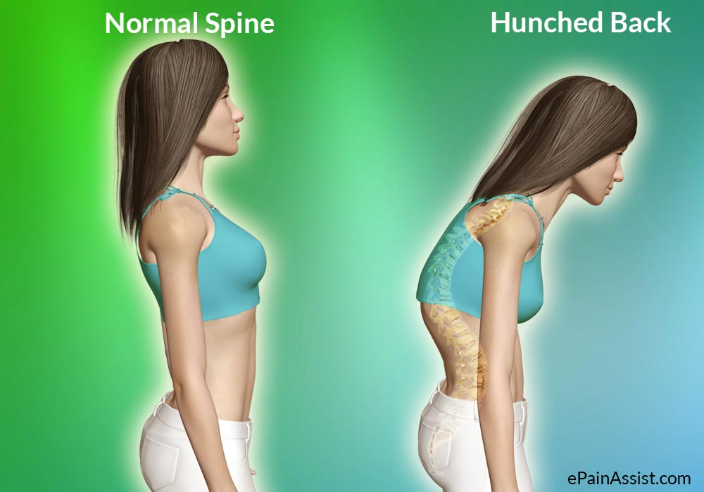 Hunchback: Causes, Symptoms, Treatment, Good Posture, Stretching Exercises