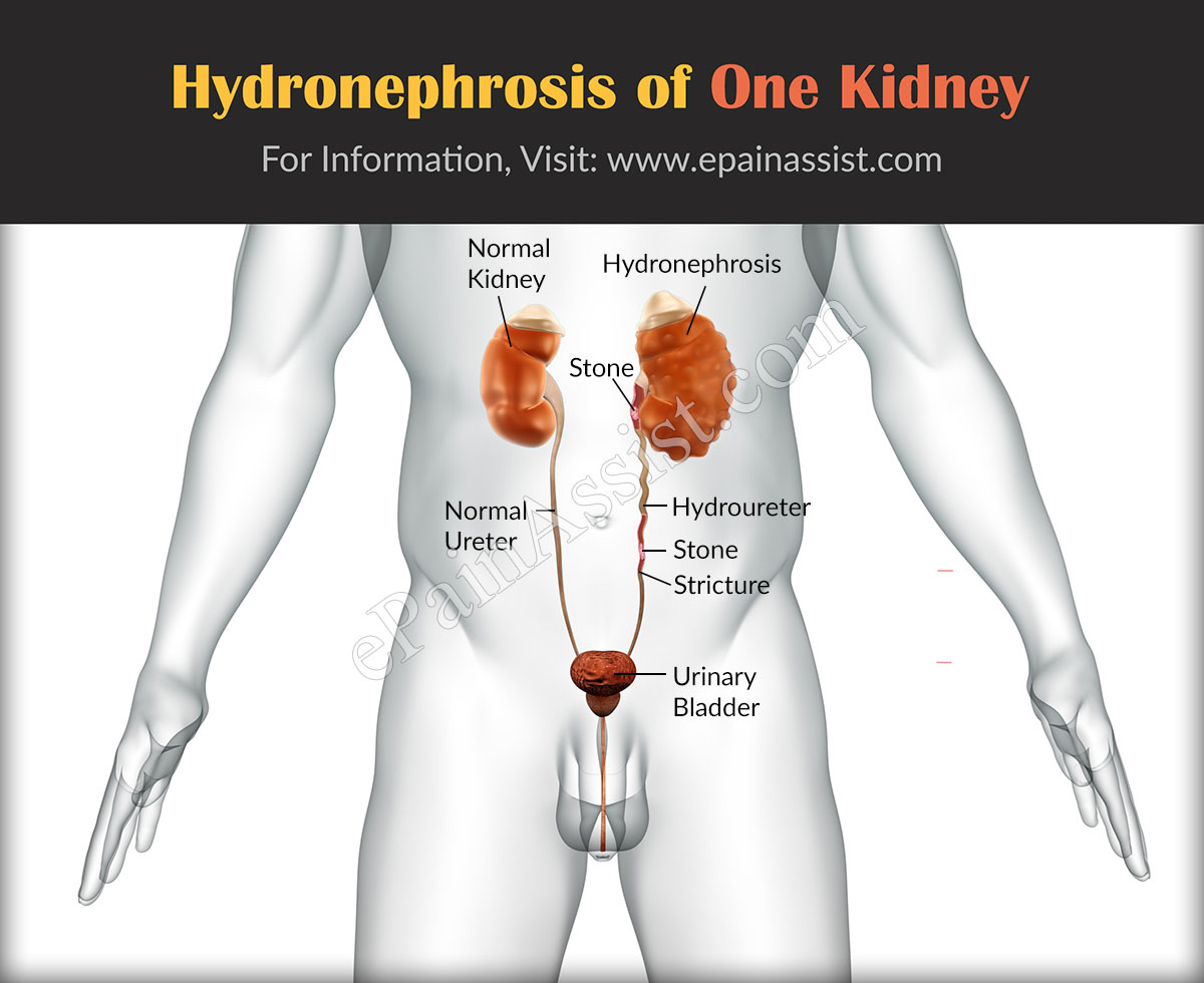 How to understand that kidneys hurt. Causes of pain in the kidney area 52