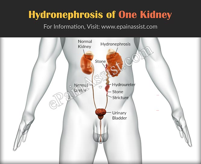 Hydronephrosis of One Kidney