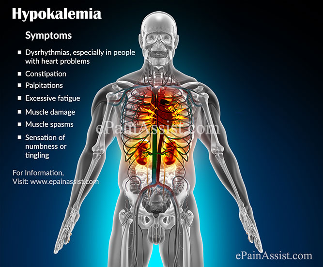 Hypokalemia: Treatment, Prognosis, Complication, Causes ...