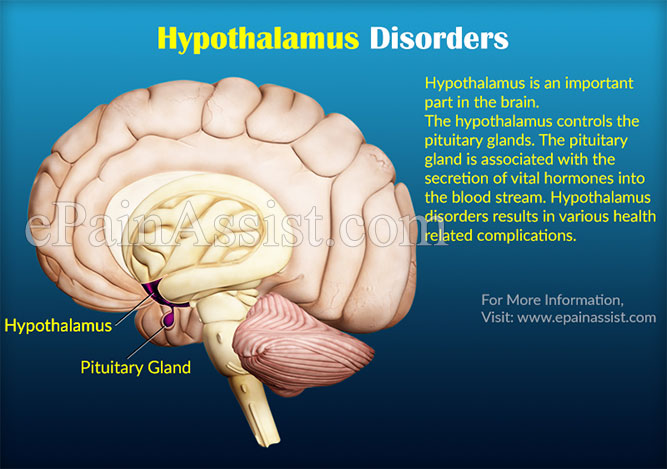 Hypothalamus Disorders