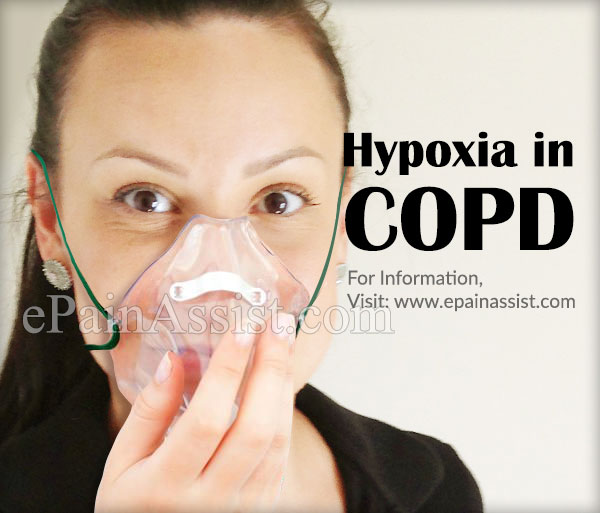 Hypoxia in COPD