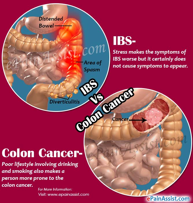 ibs vs. colon cancer: differences worth knowing, Human Body