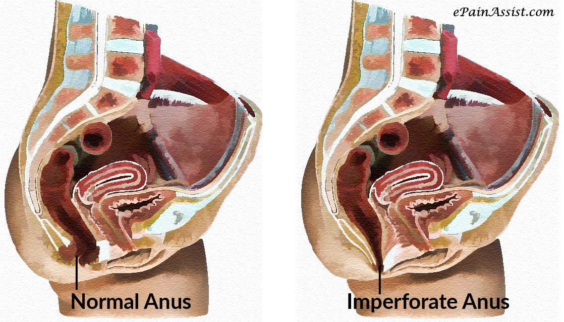 His etiology of imperforate anus