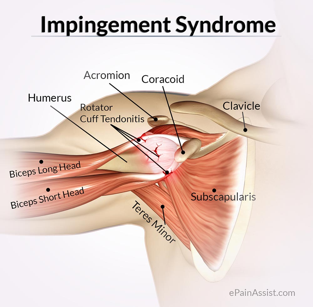 Impingement Syndrome: Treatment, Exercise, Home Remedies
