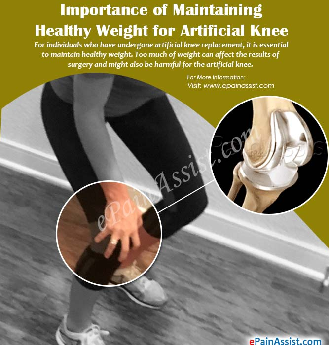 Importance of Maintaining Healthy Weight for Artificial Knee