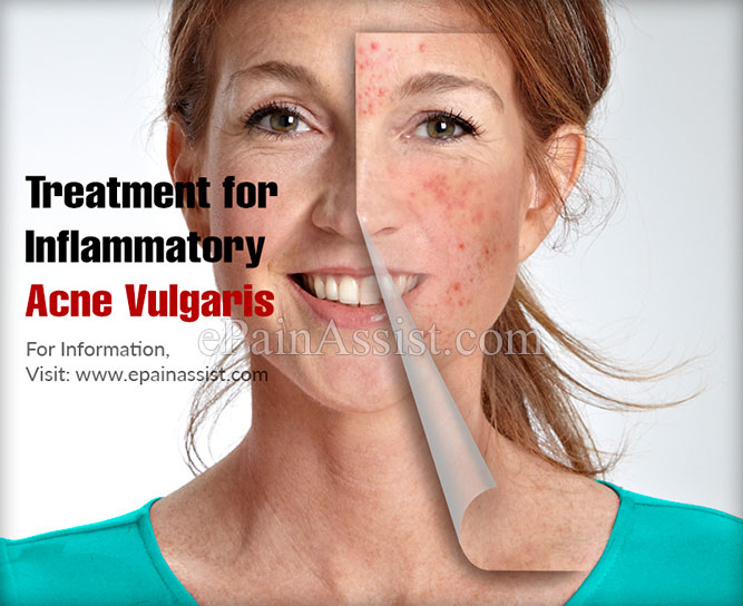 Treatment for Inflammatory Acne Vulgaris
