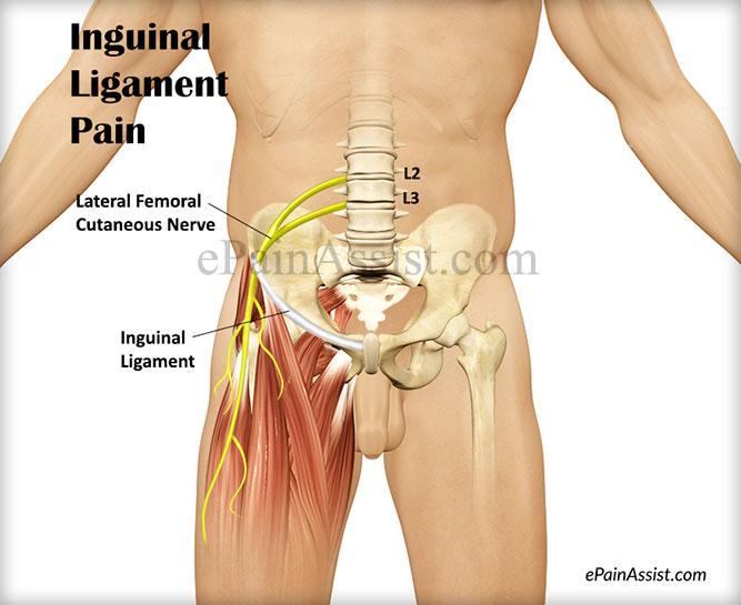 Inguinal Ligament Pain Causes Symptoms Treatment