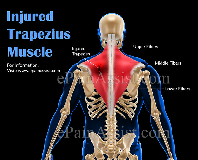 Injured Trapezius Muscle