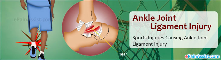 Ankle Joint Ligament Injury