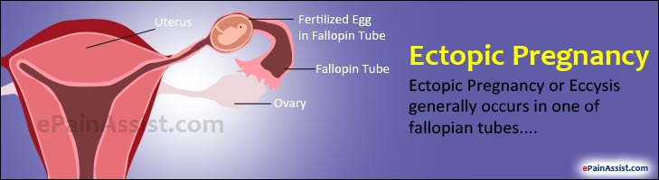 The gallery for --> Ectopic Pregnancy Pain