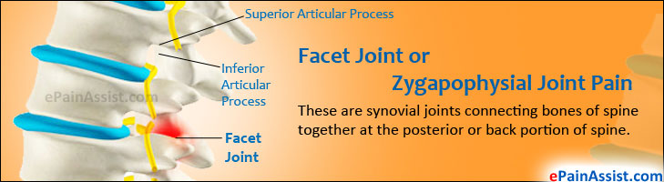 Facet Joint or Zygapophysial Joint Pain