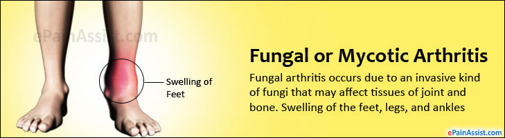 Fungal or Mycotic Arthritis