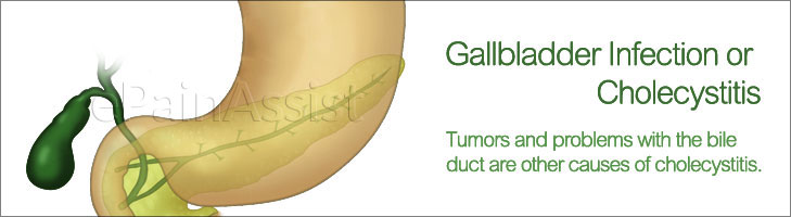 Gallbladder Infection (Cholecystitis)