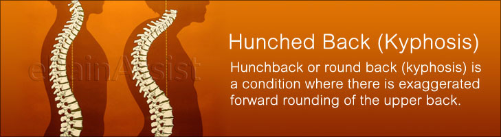 What is Hunched Back (Kyphosis)?