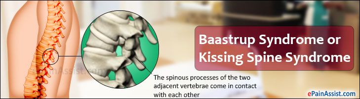 Baastrup Syndrome or Kissing Spine Syndrome in Humans