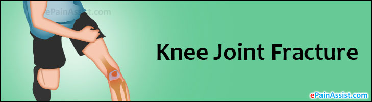 Knee Joint Fracture