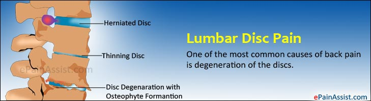 Lumbar Disc Pain